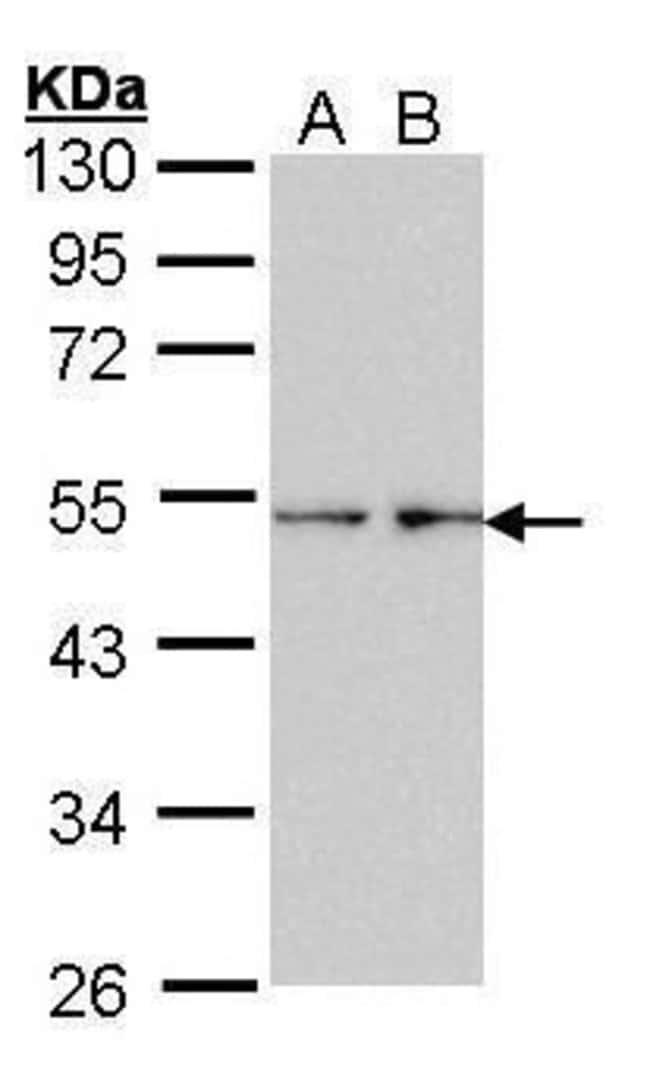 Fascin Rabbit anti-Human, Polyclonal, Invitrogen 100 µL; Unconjugated