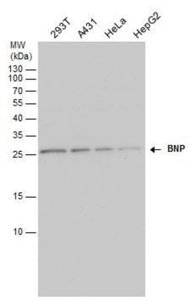 BNP Rabbit anti-Human, Polyclonal, Invitrogen 100 µL; Unconjugated