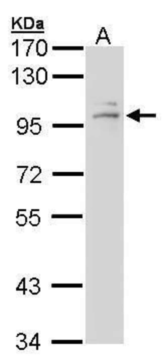 Glucocorticoid Receptor Rabbit anti-Human, Mouse, Rat, Polyclonal, Invitrogen