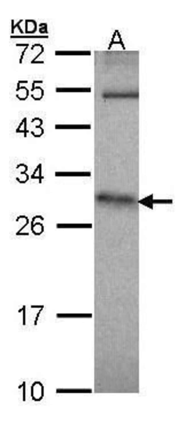 HPRT1 Rabbit anti-Human, Polyclonal, Invitrogen 100 µL; Unconjugated