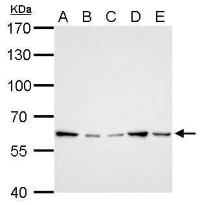 GGT1 Rabbit anti-Human, Mouse, Polyclonal, Invitrogen 100 µL; Unconjugated
