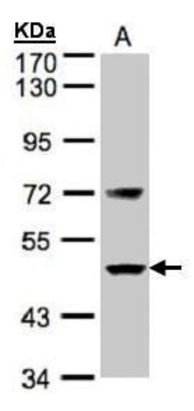 Factor VII Rabbit anti-Human, Mouse, Polyclonal, Invitrogen 100 µL;
