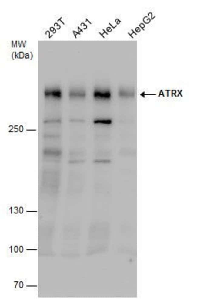 ATRX Rabbit anti-Human, Mouse, Polyclonal, Invitrogen 100 µL; Unconjugated