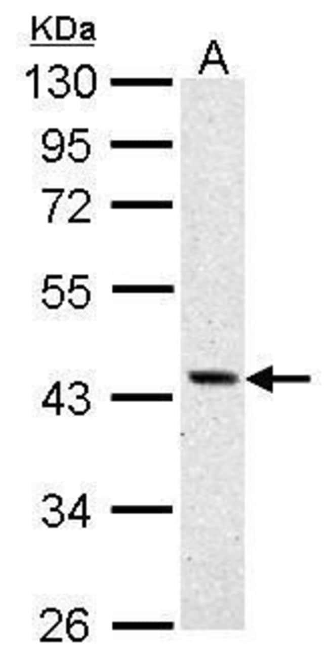 ASS1 Rabbit anti-Human, Polyclonal, Invitrogen 100 µL; Unconjugated