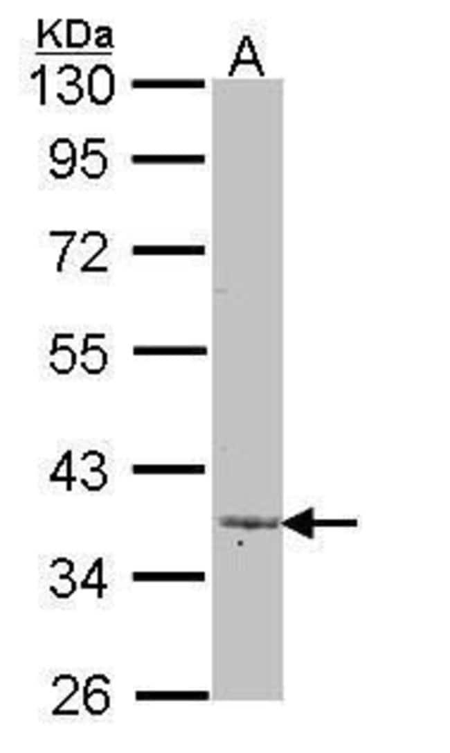 LEFTY2 Rabbit anti-Human, Polyclonal, Invitrogen 100 µL; Unconjugated