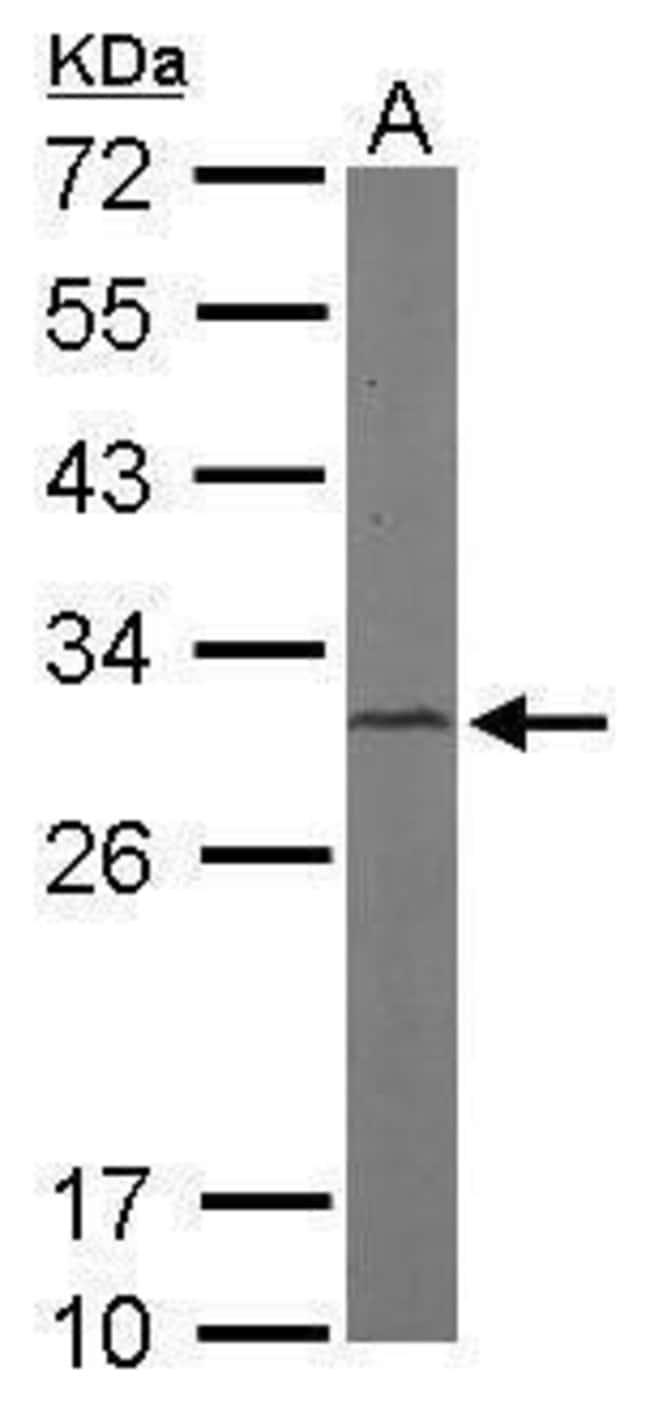 CAPZB Rabbit anti-Human, Mouse, Polyclonal, Invitrogen 100 µL; Unconjugated