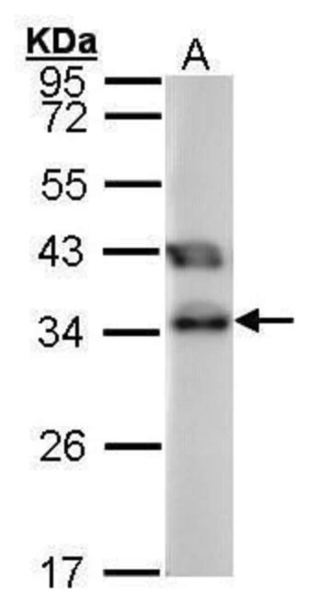 TTC1 Rabbit anti-Human, Polyclonal, Invitrogen 100 µL; Unconjugated