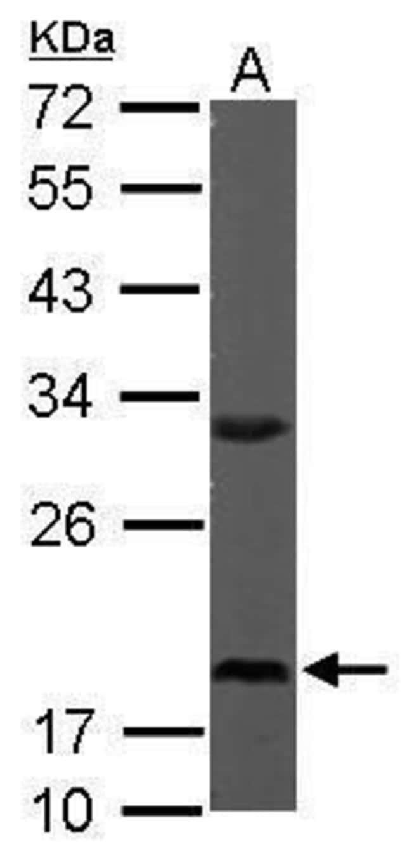 RPS10 Rabbit anti-Human, Mouse, Polyclonal, Invitrogen 100 µL; Unconjugated