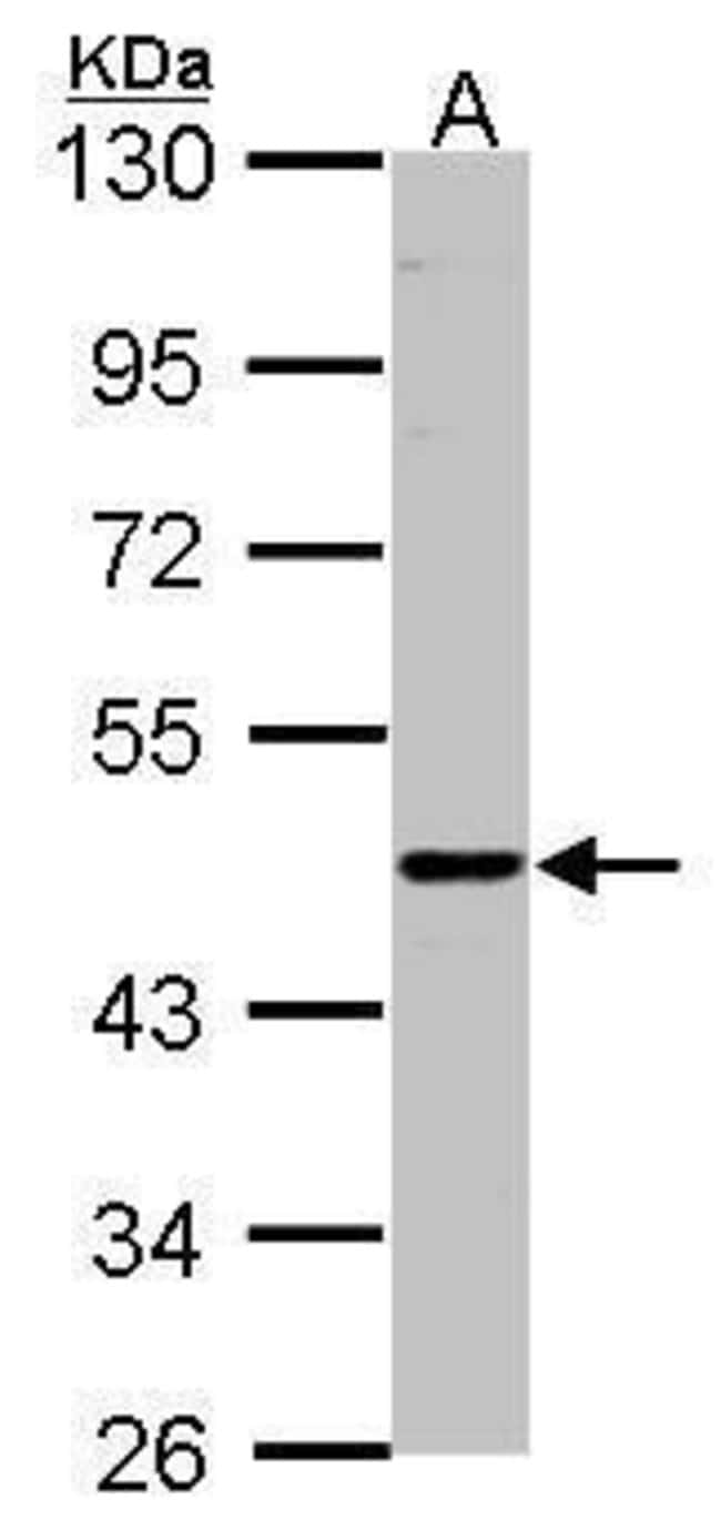 ENTPD6 Rabbit anti-Human, Polyclonal, Invitrogen 100 µL; Unconjugated