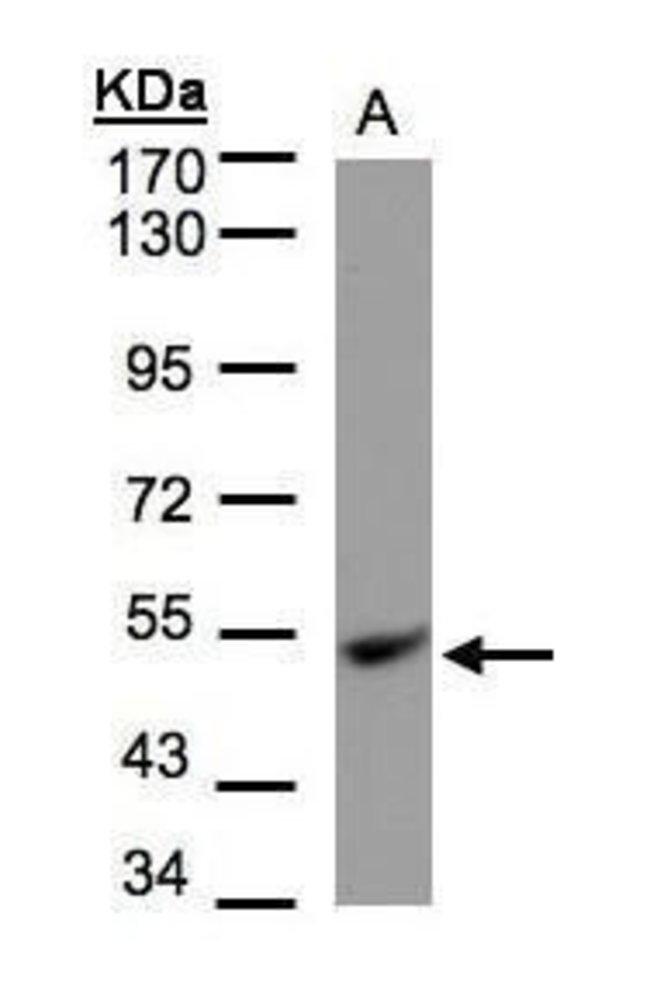 UQCRC1 Rabbit anti-Human, Mouse, Polyclonal, Invitrogen 100 µL; Unconjugated
