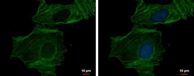 alpha-Cardiac Actin Rabbit anti-Human, Mouse, Rat, Polyclonal, Invitrogen