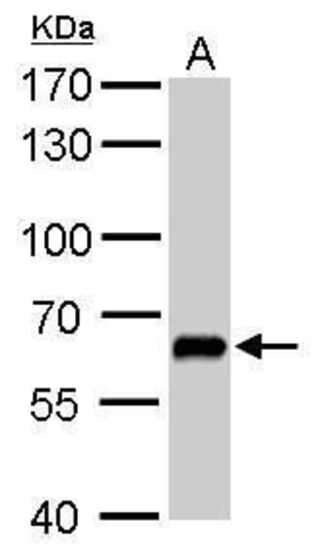 GAD67 Rabbit anti-Human, Mouse, Rat, Polyclonal, Invitrogen 100 µL;