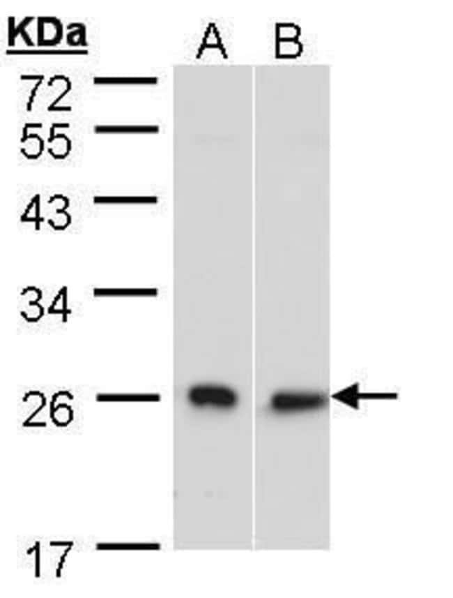 DNAJB6 Rabbit anti-Human, Polyclonal, Invitrogen 100 µL; Unconjugated