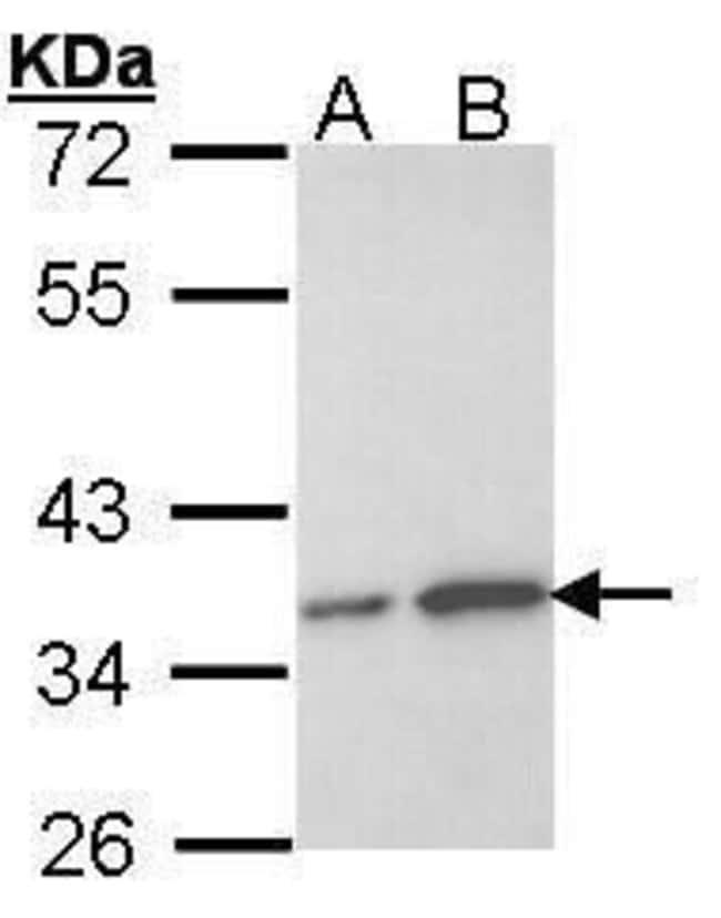 OTUB1 Rabbit anti-Human, Mouse, Polyclonal, Invitrogen 100 µL; Unconjugated