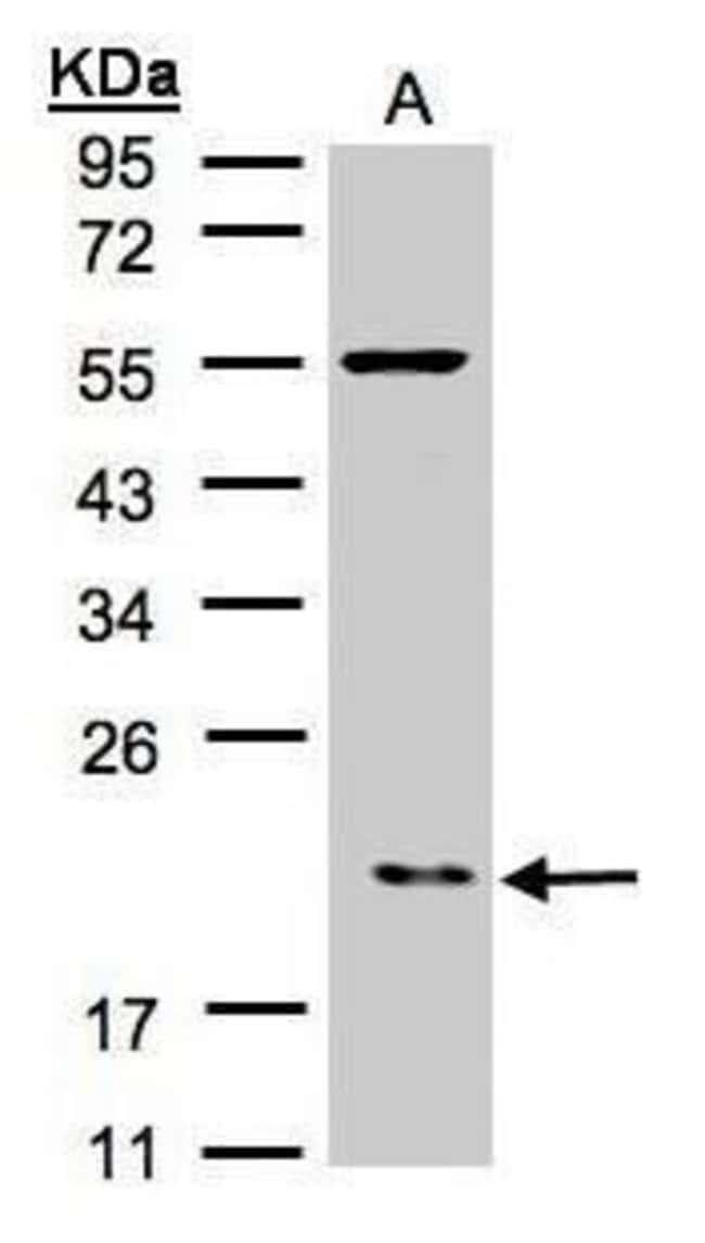 p21 ARC Rabbit anti-Human, Polyclonal, Invitrogen 100 µL; Unconjugated