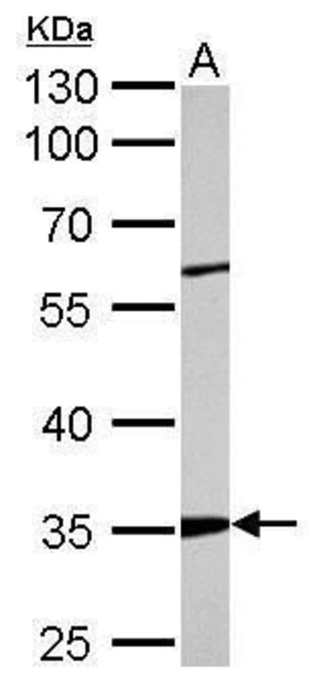 ARPC2 Rabbit anti-Human, Mouse, Rat, Polyclonal, Invitrogen 100 µL;