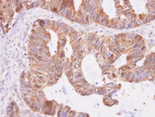 DNPEP Rabbit anti-Human, Polyclonal, Invitrogen 100 µL; Unconjugated