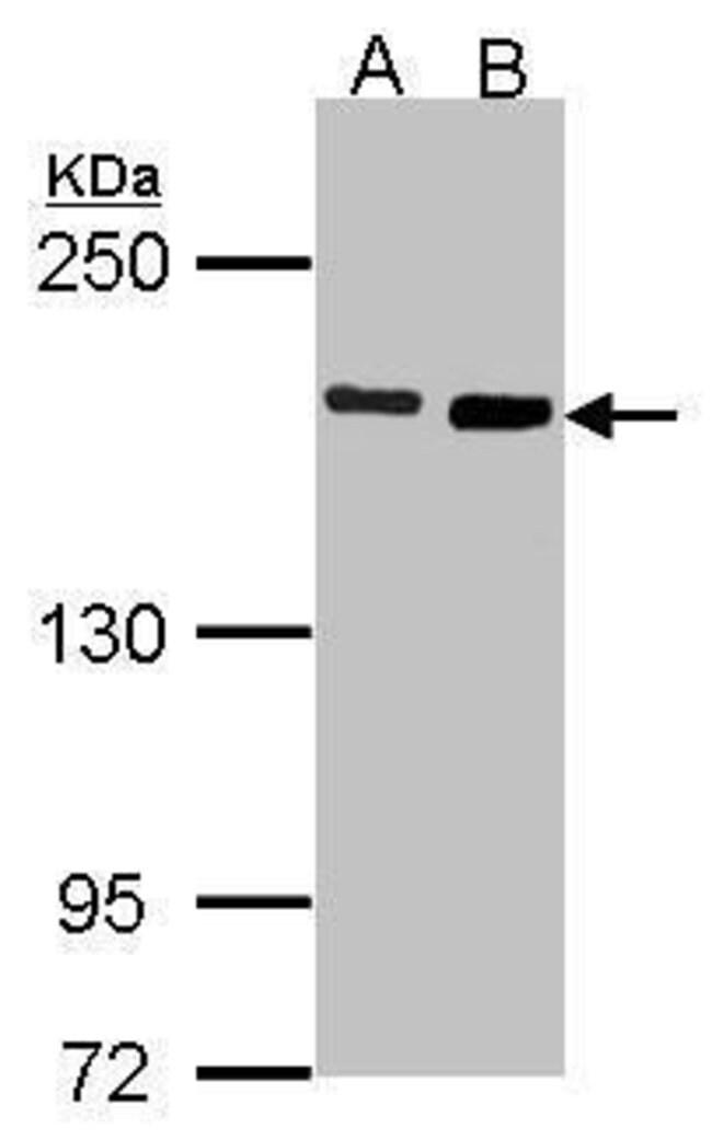 DIAPH1 Rabbit anti-Human, Polyclonal, Invitrogen 100 µL; Unconjugated