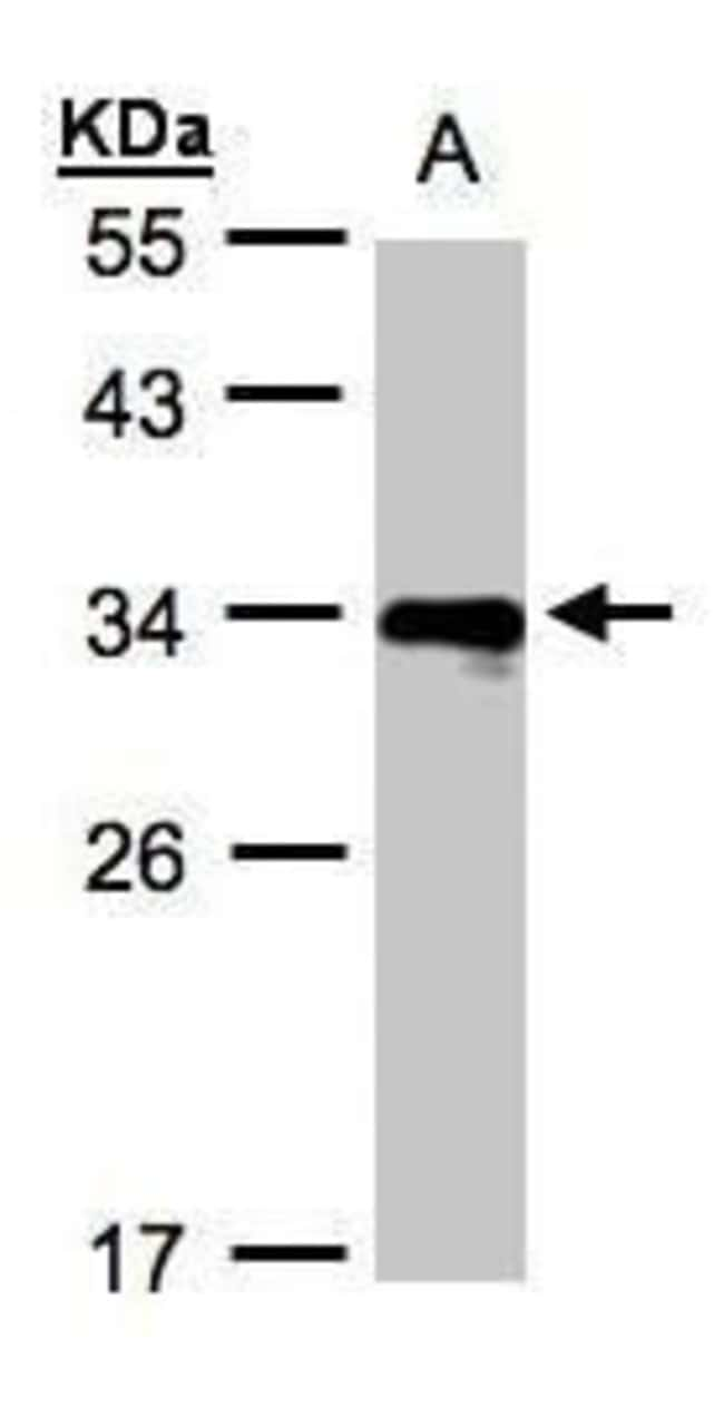 HLA-DR beta Rabbit anti-Human, Polyclonal, Invitrogen 100 µL; Unconjugated