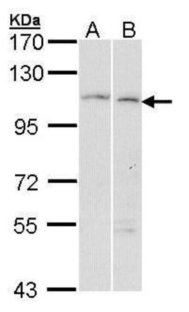 GANAB Rabbit anti-Human, Polyclonal, Invitrogen 100 µL; Unconjugated
