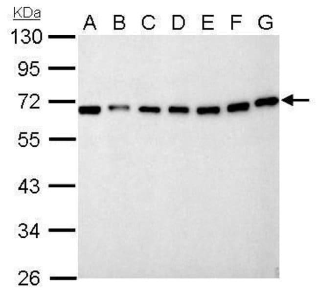 NUP62 Rabbit anti-Human, Mouse, Rat, Polyclonal, Invitrogen 100 µL;