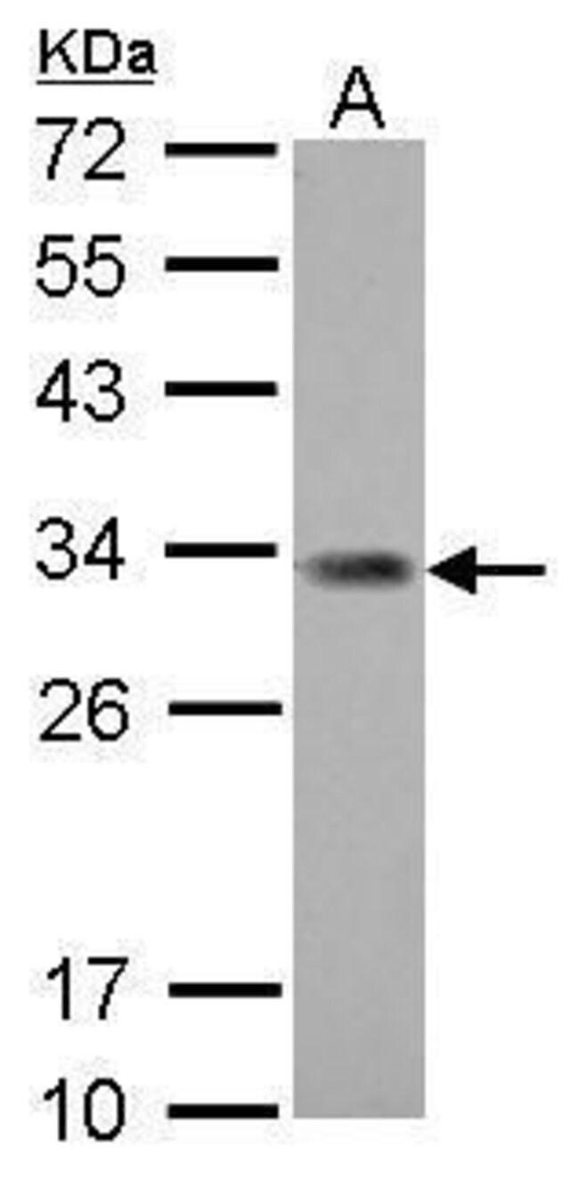 ING5 Rabbit anti-Human, Polyclonal, Invitrogen 100 µL; Unconjugated