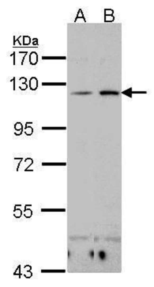 CD11c Rabbit anti-Human, Polyclonal, Invitrogen 100 µL; Unconjugated