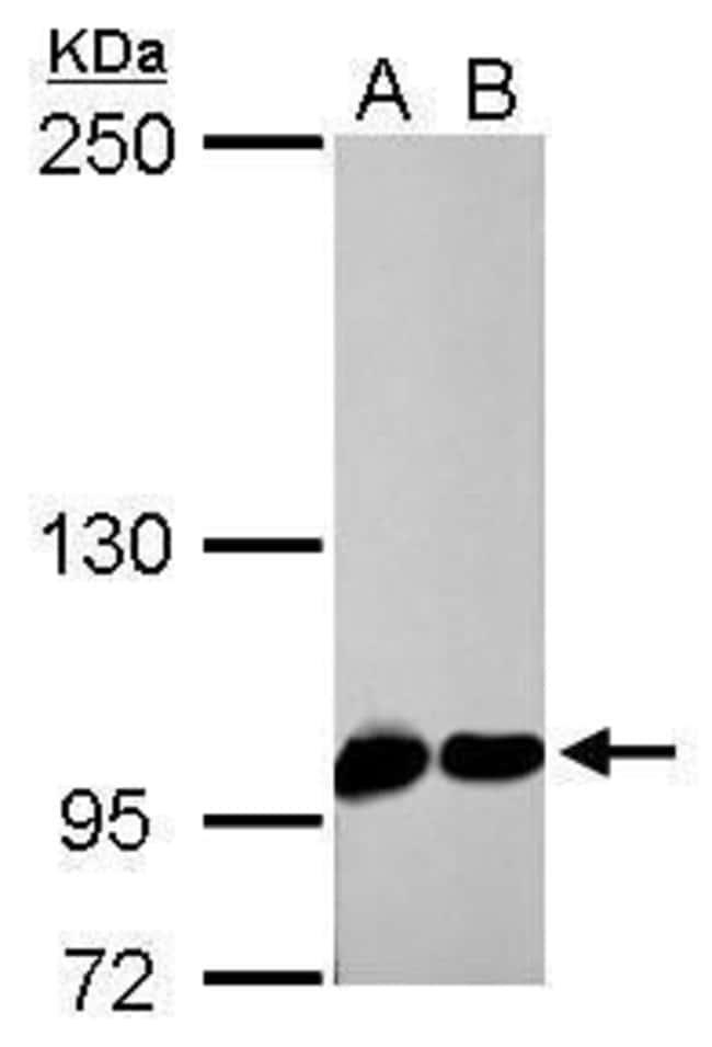 CAS Rabbit anti-Human, Mouse, Rat, Polyclonal, Invitrogen 100 µL;