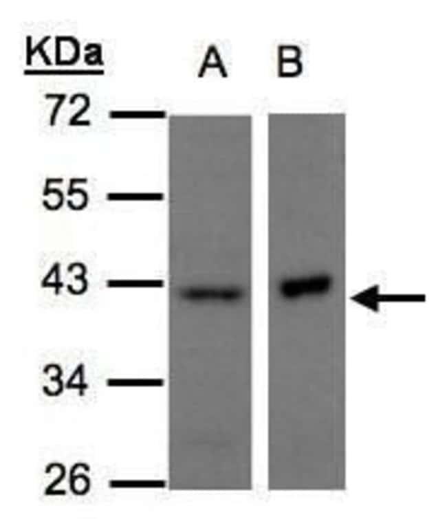 NDUFA10 Rabbit anti-Human, Polyclonal, Invitrogen 100 µL; Unconjugated