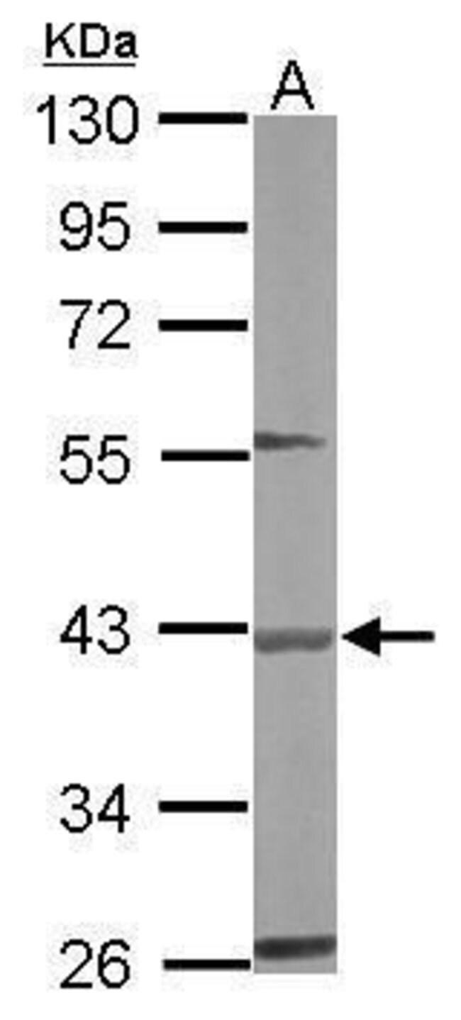 BBOX1 Rabbit anti-Human, Mouse, Polyclonal, Invitrogen 100 µL; Unconjugated