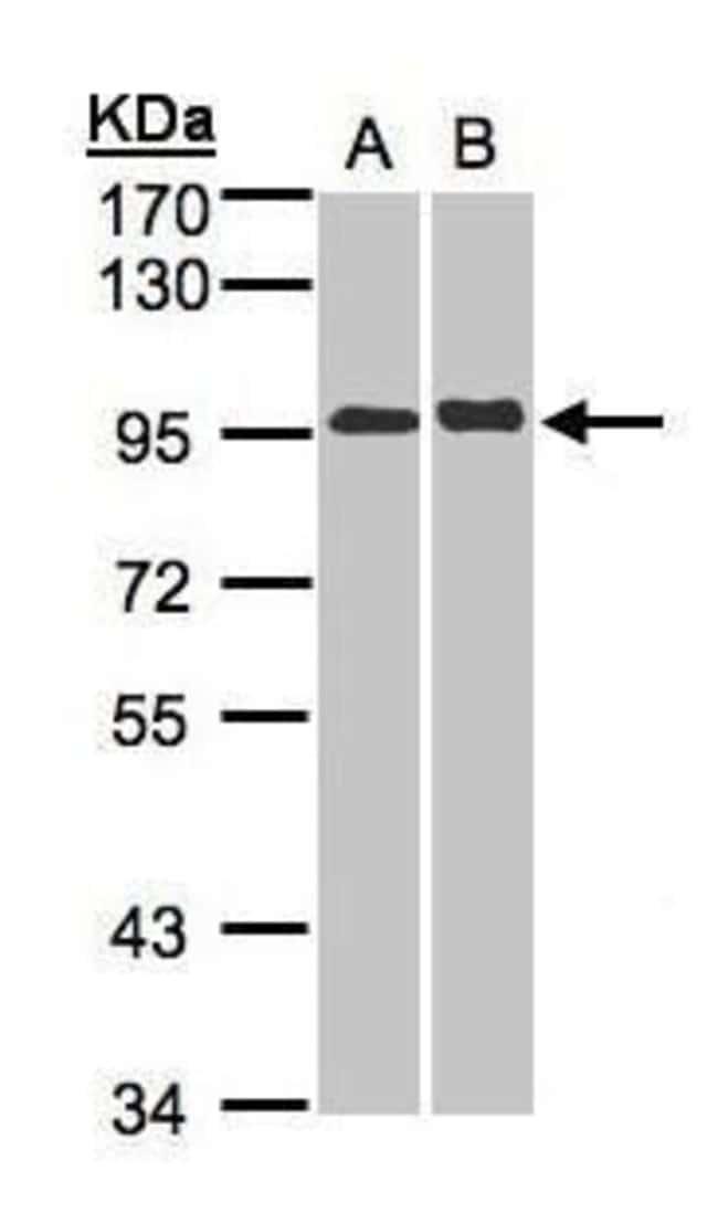 IL12RB2 Rabbit anti-Human, Polyclonal, Invitrogen 100 µL; Unconjugated
