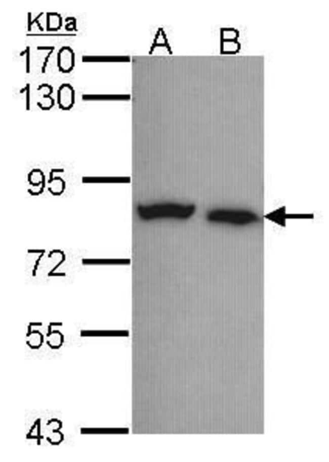 Calpain 5 Rabbit anti-Human, Polyclonal, Invitrogen 100 µL; Unconjugated