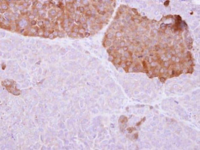 IL22RA2 Rabbit anti-Human, Polyclonal, Invitrogen 100 µL; Unconjugated