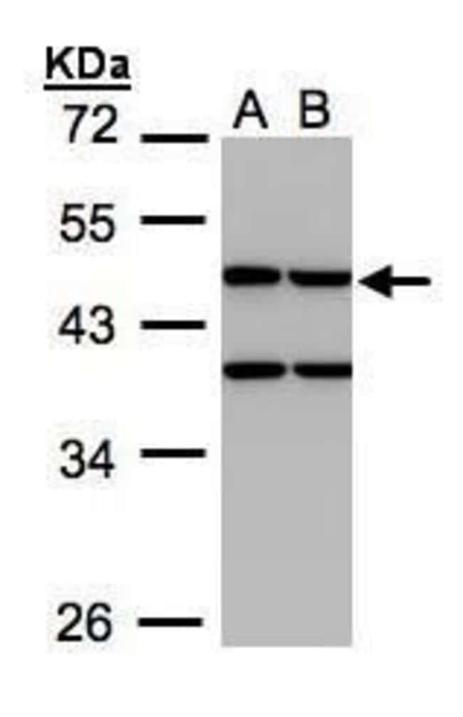 Creatine Kinase MT Rabbit anti-Human, Polyclonal, Invitrogen 100 µL;