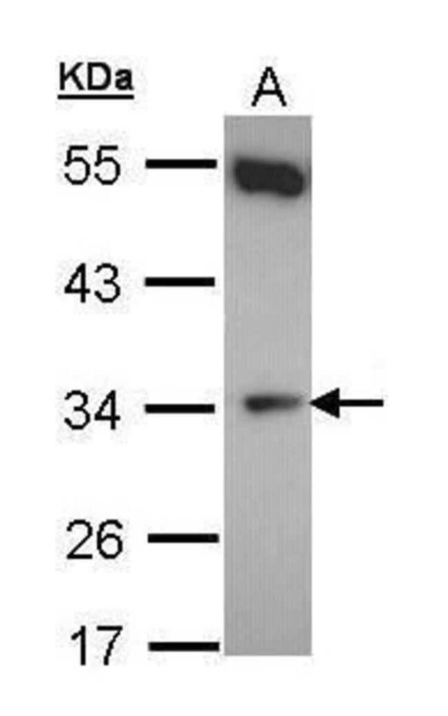 CYB5R1 Rabbit anti-Human, Polyclonal, Invitrogen 100 µL; Unconjugated