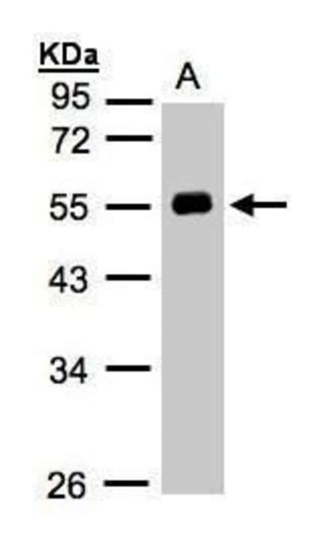 Angiotensin Rabbit anti-Human, Polyclonal, Invitrogen 100 µL; Unconjugated