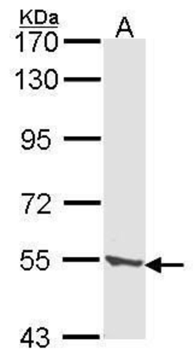 CLN2 Rabbit anti-Human, Polyclonal, Invitrogen 100 µL; Unconjugated
