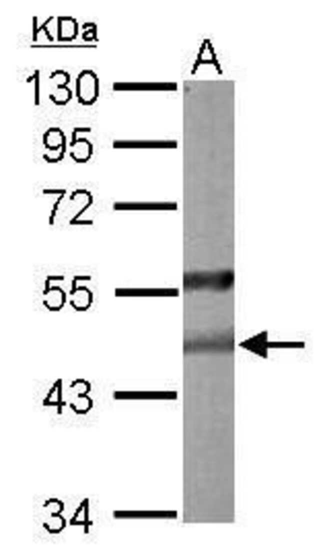 PON2 Rabbit anti-Human, Mouse, Polyclonal, Invitrogen 100 µL; Unconjugated