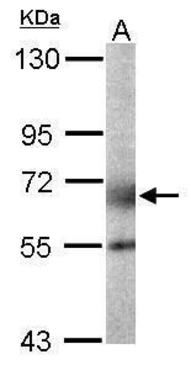 GALNT2 Rabbit anti-Human, Mouse, Rat, Polyclonal, Invitrogen 100 µL;