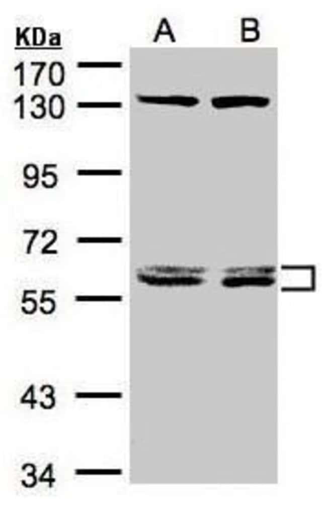 DNAJC7 Rabbit anti-Human, Mouse, Polyclonal, Invitrogen 100 µL; Unconjugated