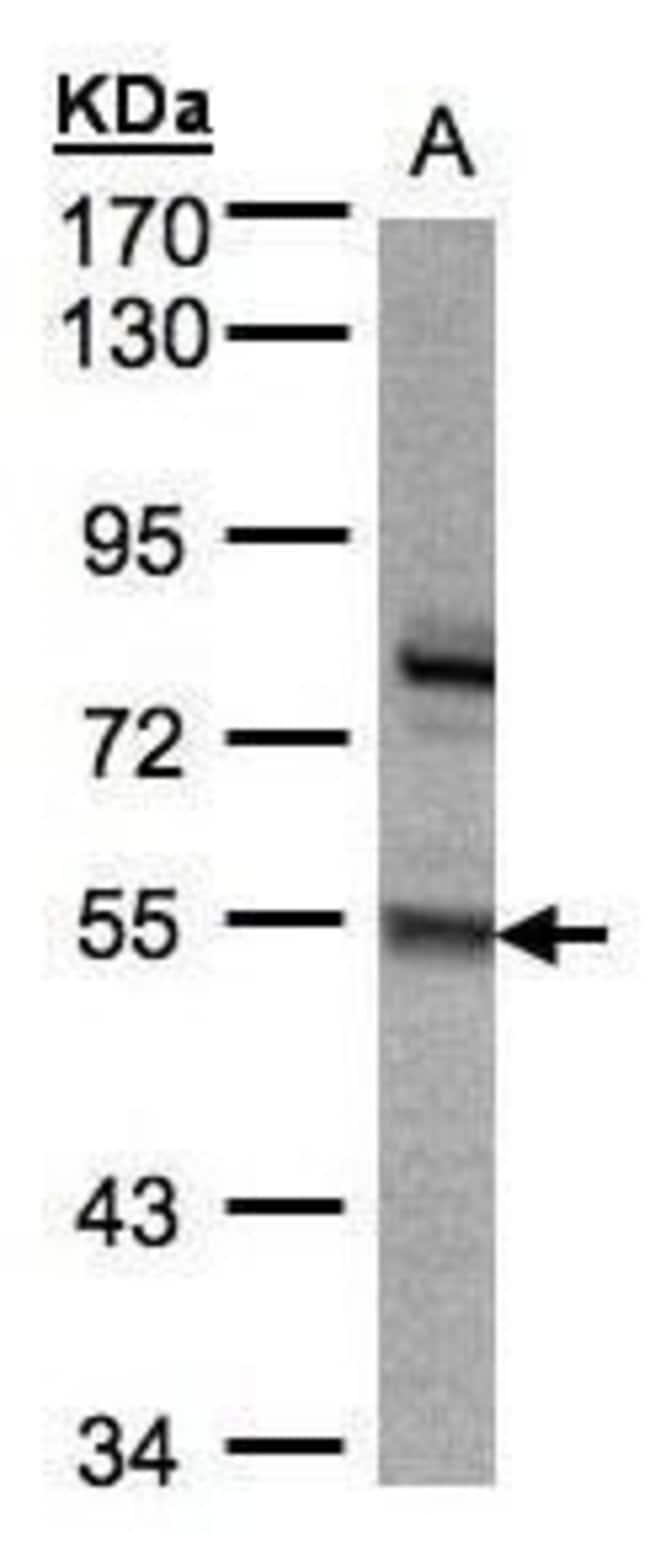 ZNF165 Rabbit anti-Human, Polyclonal, Invitrogen 100 µL; Unconjugated