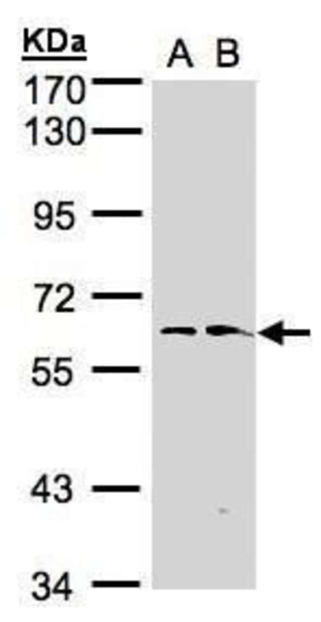 FMO1 Rabbit anti-Human, Polyclonal, Invitrogen 100 µL; Unconjugated