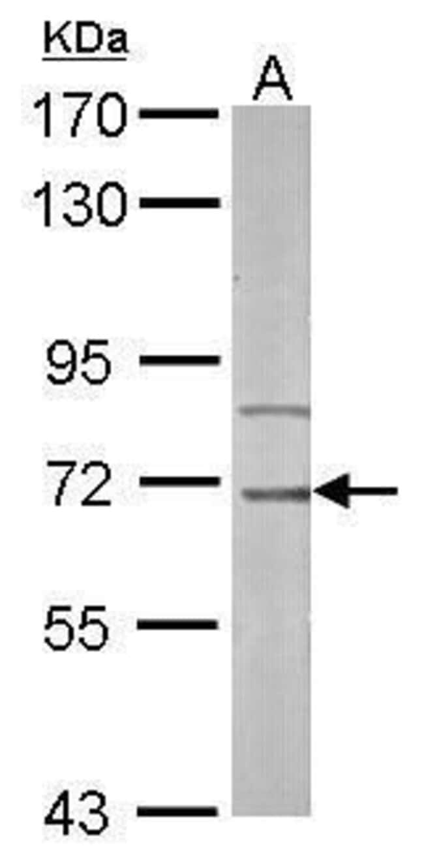 IRAK-M Rabbit anti-Human, Mouse, Polyclonal, Invitrogen 100 µL; Unconjugated