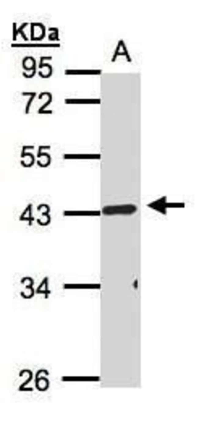 TNFRSF19L Rabbit anti-Human, Polyclonal, Invitrogen 100 µL; Unconjugated