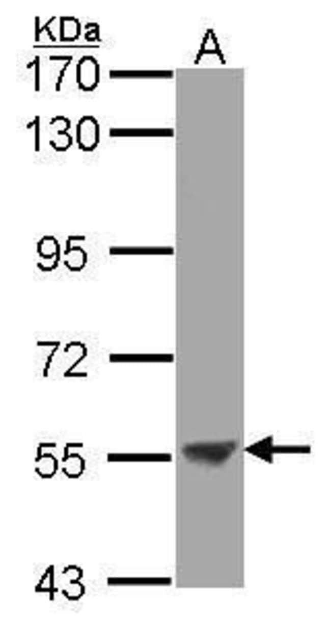 ENTPD3 Rabbit anti-Human, Polyclonal, Invitrogen 100 µL; Unconjugated