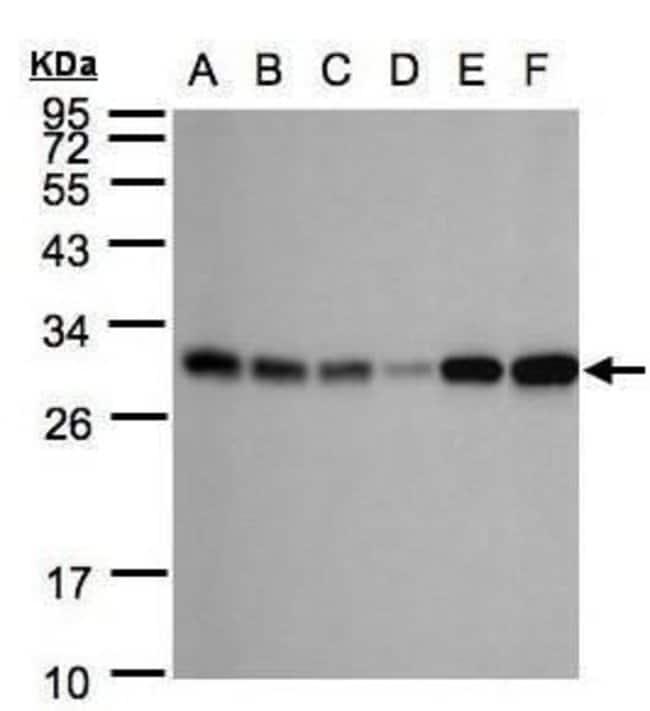 Adenylate Kinase 4 Rabbit anti-Human, Polyclonal, Invitrogen 100 µL;