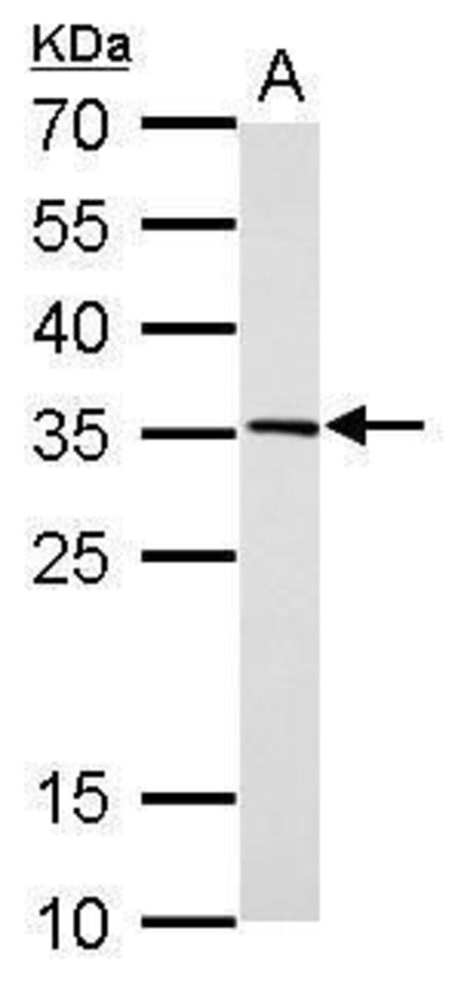 DC8 Rabbit anti-Human, Mouse, Rat, Polyclonal, Invitrogen 100 µL;