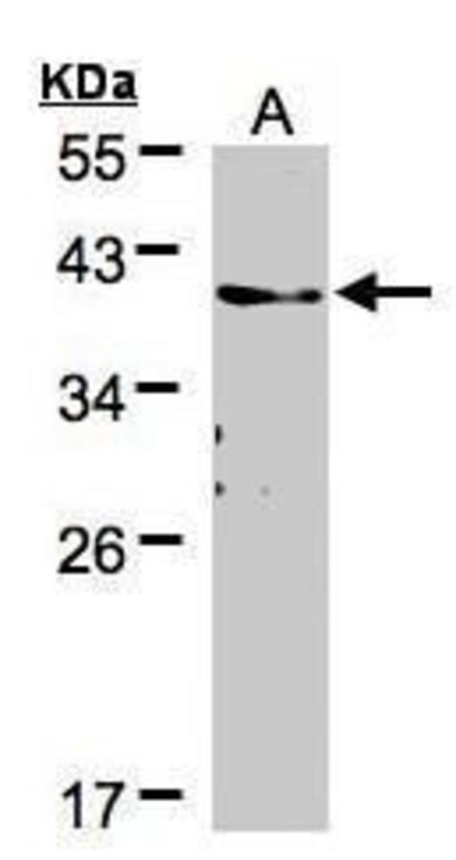TMEM59 Rabbit anti-Human, Mouse, Rat, Polyclonal, Invitrogen 100 µL;
