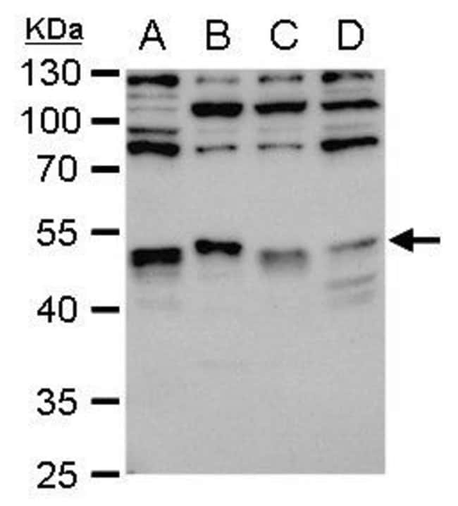 LDB1 Rabbit anti-Human, Mouse, Rat, Polyclonal, Invitrogen 100 µL;