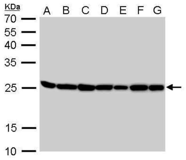 TPI1 Rabbit anti-Human, Mouse, Rat, Polyclonal, Invitrogen 100 µL;